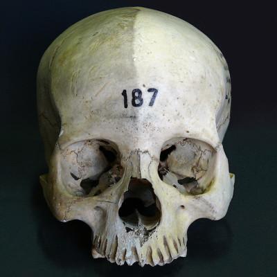 Proceso de limpieza de cráneo humano. España (Universidad)