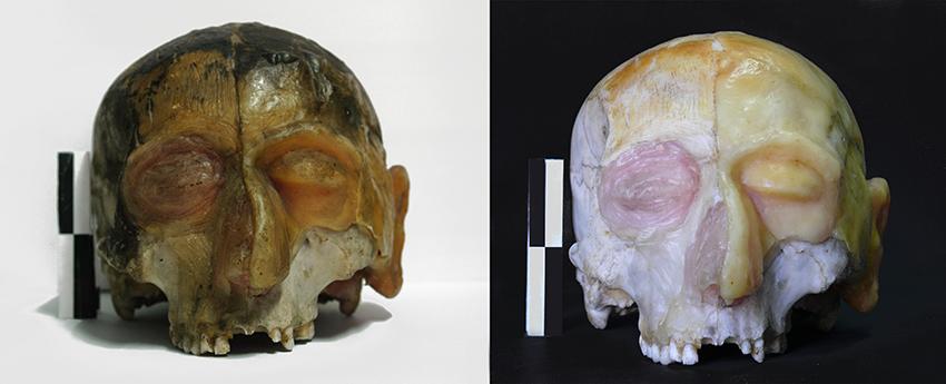Limpieza de cabeza anatómica (hueso y cera). España (Universidad)